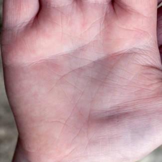 kerek piros foltok a kezek fotó