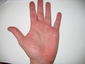 hogyan lehet kezelni a pikkelysömör fején népi gyógymódokkal hosszú ideig vörös folt a bőrön